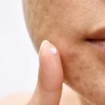 Como quitar marcas de acne